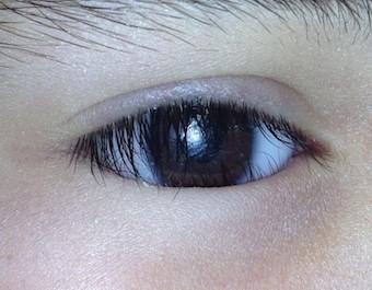 prótesis ocular fija