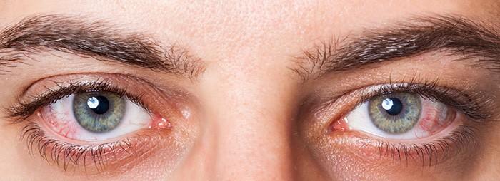 Ojo seco, diagnóstico y tratamiento