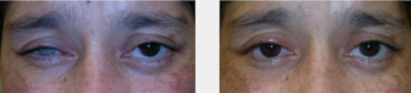Implante orbitario y prótesis ocular